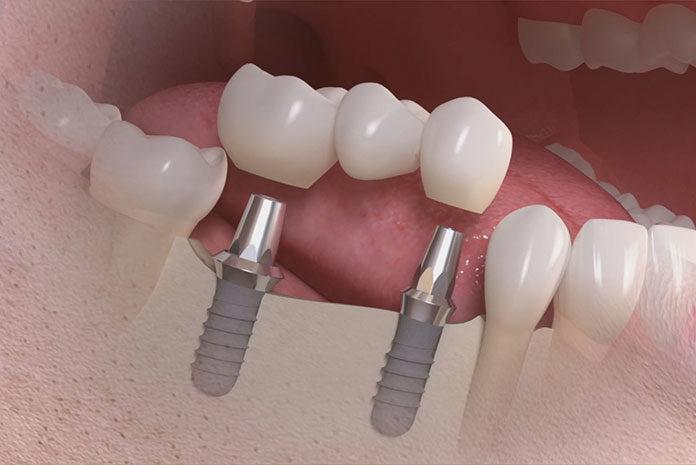 Implanty zębów - co trzeba wiedzieć?