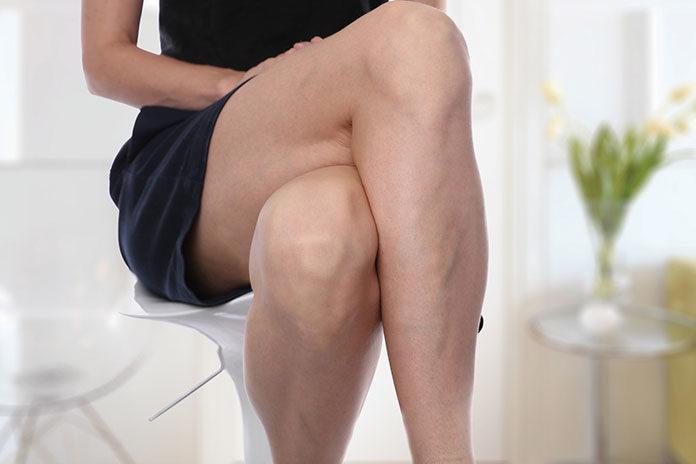 Żylaki i obrzęki kończyn dolnych – częsty problem wśród kobiet